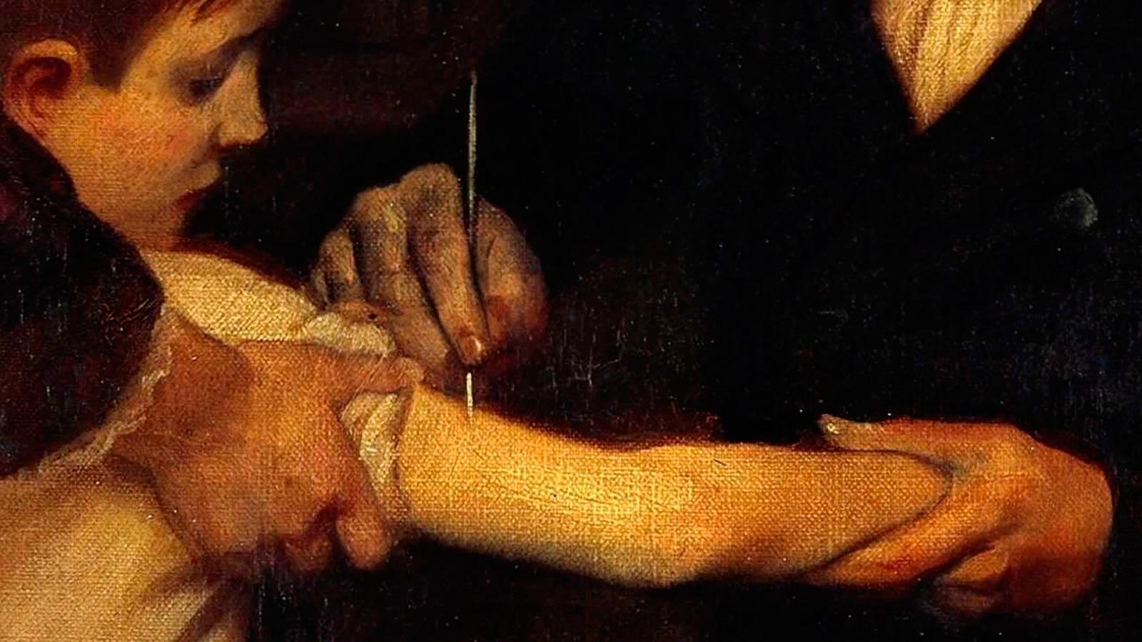 Прививка - вариоляция